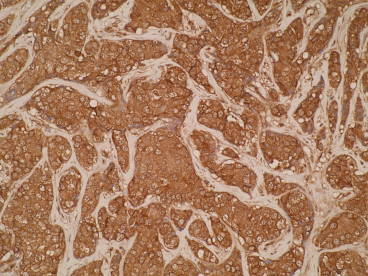 Immunohistochemistry was performed on formalin-fixed, paraffin-embedded human breast cancer tissue using anti-DRAM2 [VAB24-P1C8*A3]