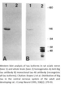 Image for Anti-Big (high-molecular-weight) tau, Polyclonal antibody