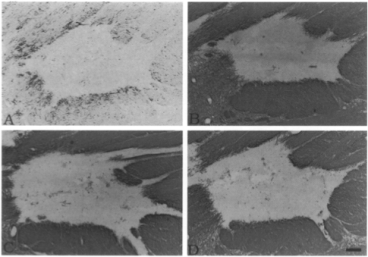 Clone MBP 2 used to detect myelinated structures in MS plaques by IHC-F.  D: Clone2 also recognized all myelinated structures. Source: Matsuo et al. 1997. Am J Pathol. 150(4):1253-66. PMID: 9094982.