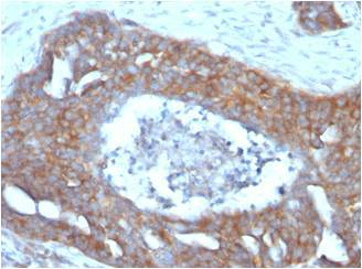 Formalin-fixed, paraffin-embedded human Ovarian Carcinoma Stained with pS2 Monoclonal Antibody (GE2).