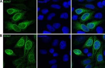 HeLa cells stably expressing a BirA tagged TorsinAE171Q were fixed in (A) 4% PFA or (B) cold methanol and stained with anti-BirA 6C4c7 monoclonal antibody (green). The nuclei were counter-stained with Hoechst.