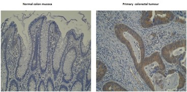 Immunohistochemistry was performed on formalin-fixed, paraffin-embedded normal and primary colorectal tumour tissue sections using neat culture supernatants of anti-CYP4V2 [M29-P3B10] . Photomicrographs show negative staining of anti-CYP4V2 [M29-P3B10] in normal colon mucosa and strong immunostaining in primary colorectal tumour. Cytoplasmic localisation of CYP4V2 is also observed.