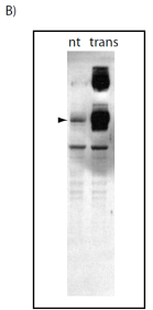 Western blot using HEK293 lysates either non-transfected (nt) or transfected (trans) with HA-tagged human Atg9.