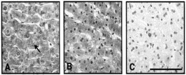 Beta C Clone 1 used to detect hepatocytes in human liver by IHC. βC-Subunit immunoreactivity was detected in hepatocytes in human liver sections with βCclone 1 antibody supernatant. Source: Mellor et al. 2000. J Clin Endocrinol Metab. 85(12):4851-8. PMID: 11134153.