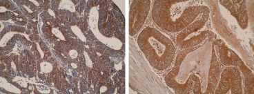 Immunohistochemistry was performed on formalin-fixed, paraffin-embedded tissue sections. Images are showing strong cytoplamic positivity of CYP26A1 in primary colorectal cancer using the Anti-CYP26A1 [F27P6A1]. Antigen retrieval step was required (microwave 10 min @ 950W in 0.01M sodium citrate buffer, pH 6.0).
