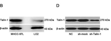 Adapted from Chen et al. 2017. Oncotarget; 8(8):13003-13014. PMID: 28099903. Figure (B)  Western blot analysis of Talin-1 protein expression. Talin-1 is more highly expressed in MHCC-97L cells compared with LO2 cells in terms of protein amounts.