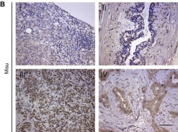 Adapted from Frye et al. 2010. Cancer Lett; 289(1):71-80. PMID: 19740597 Figure. Misu protein expression in breast tumours. Immunohistochemistry for Misu (Nsun2) on tissues from breast tumours. Scale bar: 100 μm.