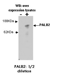 Western blotting was performed on overexpression human lysates using anti-PALB2 [M41-P3F3] applied as tissue culture supernatant.
