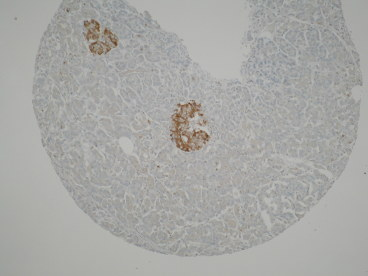 IHC performed on formalin fixed paraffin-embedded sections of normal human pancreas tissue probed with anti-TIMP2 antibody [3A4]. Positive staining is observed in the Islets of Langerhan.