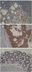 Immunohistochemistry was performed on formalin-fixed, paraffin-embedded tissue sections and showed strong cytoplasmic staining in metastatic colorectal cancer (A) and primary colorectal (B) compared to normal colon mucosa (C).