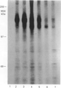 Rajkumar et al. 1994. Br J Cancer. 70(3):459-65. PMID: 8080731. Figure. Immunoprecipitation of 35D-methionine labelled HER3 cell lysate with isotype-matched negative control antibody (lane 1); polyclonal 49.3 antibody (lanes 2,4 and 6) and SGP1 monoclonal antibody (lanes 3,5 and 6). Lanes 1-3, no tunicamycin added; lanes 4-7 tunicamycin added.