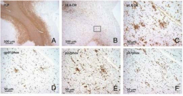 Clone PLPC1 used for the detection of PLP in brain tissue by IHC-P. In the absence of apparent myelin loss (A, E: proteolipid protein) preactive lesions are defined as circumscribed nodules of activated microglia expressing HLA-DR (B, C) and CD68 (D). Source: van Horssen et al. 2012. J Neuroinflammation. 9:156. PMID: 22747960.