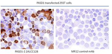 IHC frozen