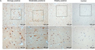 Adapted from Wang et al. 2017. Virol Sin; 32(5):423-430. PMID: 29116594 Figure. EBV expression in brain tissues of RE patients and controls. (A) Representative images of strong, moderate, and weak positive staining and negative staining for EBV antigen under low (scale bar = 100 µm) and high (scale bar = 50 µm) magnification.