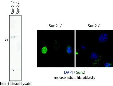 (Left) Western blot analysis of heart tissue lysates derived from SUN2+/- and SUN2-/- mice. (Right) Immunofluorescence microscopy of adult fibroblasts derived from SUN2+/- and SUN2-/- mice. Cells were labeled with the 3.1E monoclonal antibody against SUN2. This antibody can be used on either formaldehyde- or methanol-fixed cells.