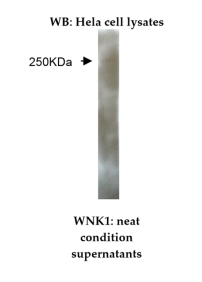 Western blot staining of HeLa cell lysate using anti-WNK1 [M42-P3B10]. A 250kDa protein was detected.