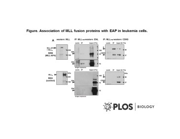 Adapted from Mueller et al. 2009. PLoS Biol. 7(11):e1000249. PMID: 19956800 Figure. Association of MLL fusion proteins with EAP in leukemia cells. (A) Coimmunoprecipitation (IP) of MLL-AF4 with endogenous ENL and CDK9 in patient-derived SEM cells. The MLL-AF4 fusion protein was precipitated by anti-MLL antibodies from extracts of the t(4;11) B-lymphocytic leukemia line SEM (upper panels). To control for precipitation with wild-type MLL, a B-ALL line of different etiology (REH) was included (lower panels). Precipitates were analyzed alongside a sample of input and probed for ENL and CDK9. Mock precipitations without antibody served as additional controls (contr). Note that MLL-AF4 corresponds in size to the N-terminal part of MLL that is produced after posttranslational cleavage of wild-type MLL. Therefore, MLL-AF4 and MLL-N comigrate as single band. In SEM as well as in REH, a longer splice variant of CDK9 (labeled by an asterisk [*]) also was prominently detectable.