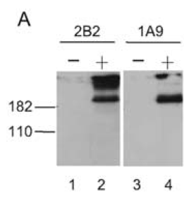 Western blotting on lysates prepared from SARS-CoV-infected Vero E6 cells (+) using anti-SΔ10 [1A9]. A lysate from mock Vero E6 cells is included as a negative control using anti-SΔ10 [1A9].