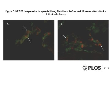 Adapted from Gheorghe et al. 2011. PLoS One. 6(1):e16378. PMID: 21298002. MPGES1 expression in synovial lining fibroblasts before and 16 weeks after initiation of rituximab therapy. Double immunofluorescence pictures show the presence of MPGES1 (red) expression in CD55 positive fibroblasts (green) in the rheumatoid tissue before rituximab initiation (A) and 16 weeks later (B). Original magnification 500x. Arrows point to double stained cells.