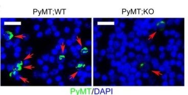 Adapted from Kim et al. 2016. Cancer Res. 76(21):6424-6435. PMID: 27569213. Figure. Circulating tumor cells (CTCs) were immunostained with a PyMT-specific antibody (green) and nuclei were stained with DAPI (blue).