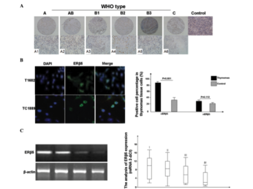 Clone PPG5/25 used to detect ERβ5 expression thymic tumors by Immunofluorescence. (A)Overexpression of cytoplasmic ERβ5 was observed in thymic carcinomas and thymomas, compared with the normal thymic tissues. (B) ERβ5 expression was observed in the T1682 and TC1889 cell lines through indirect immunofluorescence. (C) The results revealed that the mean level of ERβ5 gene expression was lower in advanced clinical stages. ERβ5, estrogen receptor β5. Source: Li et al. 2015. Oncol Lett. 10(4):2341-2346. PMID: 26622848.