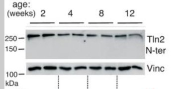 Adapted from Debrand et al. 2009. FEBS J. 276(6):1610-28. PMID: 19220457. Figure. Western blotting of testis protein extracts from two C57Bl/6 mice prior to (2 weeks old) and after puberty (4, 8 and 12 weeks). A talin 2 monoclonal CN-terminal monoclonal antibody detected only full-length talin 2. Vinculin was used as a loading control