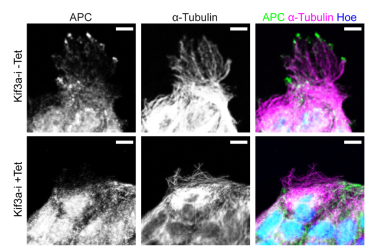 From Boehlke et al. PLoS ONE 8(9): 10.1371 Migrating MDCK cells were stained for APC (green), α-tubulin (magenta), and nuclei (blue). Punctuate staining of APC is present at plus-ends of MTs in Kif3a-i cells without tetracycline treatment (-Tet), but not in Kif3a-i depleted cells (+Tet). Scale Bars: 10 µm.