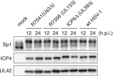 Adapted from Iwahori S, Shirata N, Kawaguchi Y, Weller SK, Sato Y, Kudoh A, Nakayama S, Isomura H, Tsurumi T. Enhanced phosphorylation of transcription factor sp1 in response to herpes simplex virus type 1 infection is dependent on the ataxia telangiectasia-mutated protein. J Virol. 2007 Sep;81(18):9653-64. doi: 10.1128/JVI.00568-07. Epub 2007 Jul 3. PMID: 17609267; PMCID: PMC2045397. Hyperphosphorylation of Sp1 is induced even upon infection of HSV-1 mutants defective for viral PK, Us3, UL13 or UL39 gene product. HFF2 cells were infected with wild-type HSV-1 (wt HSV-1), Us3-defective virus (R7041), UL13-defective virus (R7356), or UL39-defective virus (ICP6Δ) at an MOI of 5. At 12 and 24 hpi, cells were harvested and whole-cell lysates were prepared. Equal amounts of proteins from each sample (15 μg) were subjected to immunoblot analysis with anti-Sp1, ICP4, and UL42 proteins specific antibodies.