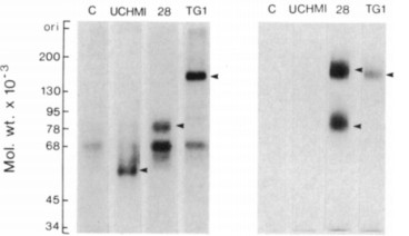 Adapted from Hogg et al. 1984. Immunology. 53(4):753-67. PMID: 6389324. Figure. Monoclonal antibody immunoprecipitates from 125I-labelled monocyte and granulocyte lysates identified by 7.5% SDS-polyacrylamide gel electrophoresis after sample reduction. Positive reactions are indicated by arrows. Control preparations were incubated with mAb 5-5. Molecular weight markers were myosin, 200,000; fi-galactosidase, 130,000; phosphorylase b, 95,000; transferrin, 78,000; bovine albumin, 68,000; ovalbumin 45,000; glyceraldehyde 3-phosphate dehydrogenase 34,000; light chain, 25,000 cytochrome c, 12,500.
