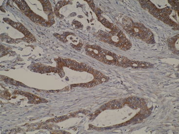 Photomicrograph of primary tumour IHC using N6-P2H5*G8
