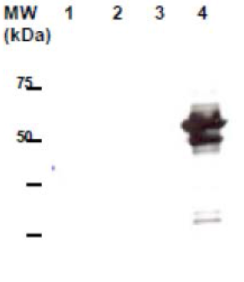 Western blot was performed on 10ug of total cell lysate from Jurkat cells (lane 1), untransfected 293T cells (lane 2), 293T transfected with pIRES2-GFP backbone vector (lane 3) and with pIRES2-GFP-zebrafish NEMO (lane 4). Anti-VTN4 [10H1] was applied at a dilution of 1:10, 000