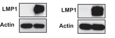 Adapted from Martin et al. 2016. J Virol; 90(19):8520-30. PMID: 27440880. Figure. LMP1 expression was confirmed by Western blotting, and actin served as a loading control in G75 (A) and Rat1 (B) cells transfected with an LMP1 expression construct or plasmid vector.