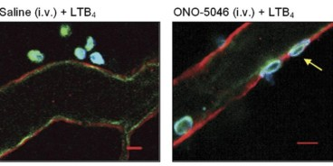 Adapted from Young et al. 2007. Br J Pharmacol; 151(5):628-37. PMID: 17471175 Figure shows representative images of postcapillary venules from saline-treated (left) or ONO-5046-treated mice (right) captured by confocal microscopy. Tissues were fixed in paraformaldehyde and immunostained overnight by using primary antibodies directed against mouse laminin 10 (as a marker for the endothelial cell basement membrane; red), PECAM-1 (as a marker for endothelial cells; green) and MRP14 (S100A9, as a marker for neutrophils; blue)