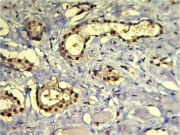 Clone PPG5/10 used to detect expression of ERβ1 in cancer tissue by IHC-P. Prostate carcinoma Gleason score 3+3 showing > 70% positive nuclei stained by IHC for ER-b. Source: Asgari et al. 2011. Diagn Pathol. 6:61. PMID: 21733187.