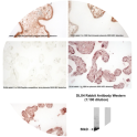 Immunohistochemical detection of DLX4 in human placenta using a 1:1000 – 1:1500 dilution of whole serum Rabbit anti-DLX4 (PINC Catalogue No. Rb1-151106-WS)