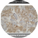 Immunohistochemistry: antibody staining of prostate cancer tissue