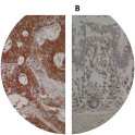 Immunohistochemistry images are showing a strong cytoplasmic positivity of ELOVL5 in (A) primary colorectal cancer whilst weak staining is observed in (B) normal colon mucosa using Anti-ELOVL5 [Z88]. IHC was performed on formalin-fixed, paraffin-embedded tissue sections. Antigen retrieval step is required (microwave 10 min @ 950W in 0.01M sodium citrate buffer, pH 6.0).