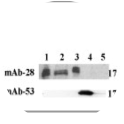 Clone 28A used to detect BMP15 in HEK-293T cell lines by Immunoblotting. (B) Recombinant proteins produced from stable HEK-293T cell lines and subjected to SDS–PAGE immunoblotting (ECL). 1: BMP15wt, 2: BMP15 form 1, 3: BMP15 form 2 (with C-terminal Flag tag), 4: GDF9 wt (recognised by the GDF9 specific mAb-53 (Gilchrist et al., 2004b)), 5: TGF-β 200 ng. All samples were reduced with 10 mM DTT before running into the gels. The specific BMP15 mAb-28 reveals the 16–17 kDa mature human BMP15 protein. The mAb-28 does not cross-react with GDF9, showing the specificity of the antibody to BMP15. Source: Pulkki et al. 2011. Mol Cell Endocrinol. 332(1-2):106-15. PMID: 20937357.