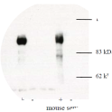 Western blotting was performed on transfected (Mibm132) Cos7 cell lysates (+) using anti-mib [6B2] or mouse serum. A lysate from untransfected cells is shown (-)