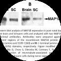 Image for Anti-MAP1B, Polyclonal antibodies