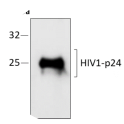 Western blot analysis of recombinant HIV1 p24 protein expression, under denaturing conditions, using anti-HIV p24 recombinant antibody and detected using anti-human IgG scFv recombinant antibody (HRP)