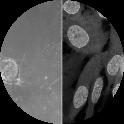 Venus-Mad2 Reporter Cell Line [RPE1 Venus-Mad2/+ KI clone #1] Metaphase