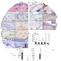 <p><b>Compound deletion of BRAF and RAF1 in the epidermis leads to severe skin inflammation in adult mice.</b></p>