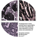 Immunohistochemical localisation of activated MMP-9 in oesophageal cancer using mAb 4A3