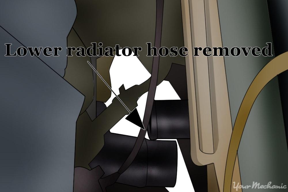removing the lower radiator hose