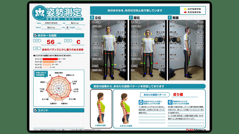 ゆがみーるクラウド。姿勢測定レポート。