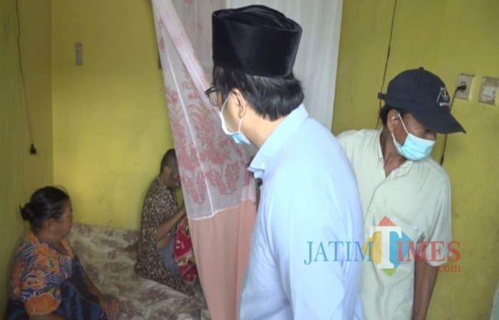 Oops, Kisah Pilu Warga Lawang Kabupaten Malang Hidup 2 Tahun Alami Kanker di Wajah