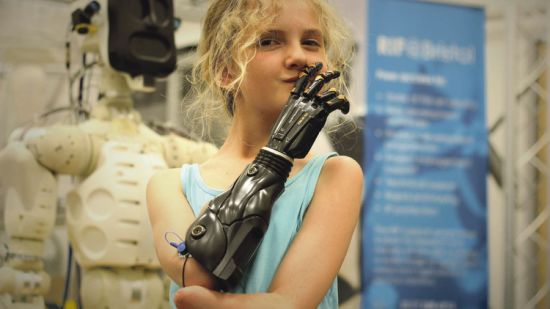 Tilly Lockey, who lost both hands to meningitis as a baby, with her a custom-built 3D printed prosthetic