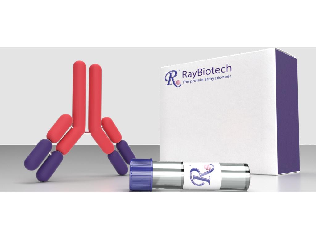 Rabbit anti-RIPK2 Antibody