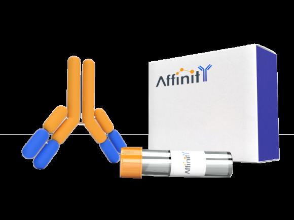 Affinity Biosciences Polyclonal MRPL16 Antibody SKU: DF3661 package